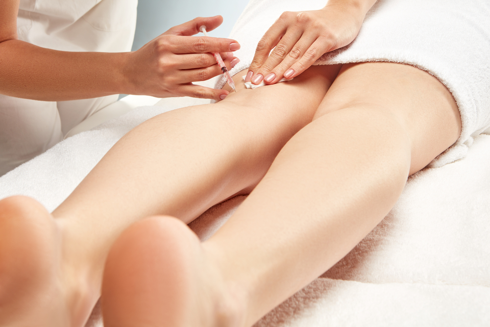 Sclerotherapy Clarksburg Maryland