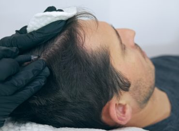 Why Scalp Micropigmentation Is the Best Hair Loss Solution for Men