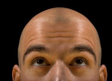 Best Hair Growth Option for Men
