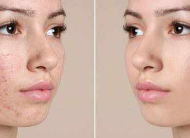 3 Tips to Make Sure You Choose the Best Acne Doctor Near Me
