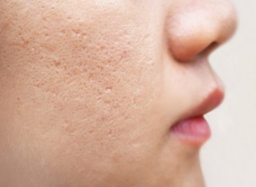 Microneedling for Acne Scars, Does It Work for Smoother Skin?
