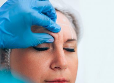 Botox vs. Filler: Which One Is Better for Me?